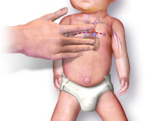 RCP Pediàtrica: Com realitzar la Reanimació Cardiopulmonar en nadons i nens